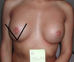Breast massage11